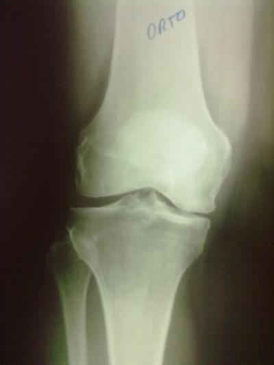 Inicio de artrose do joelho.